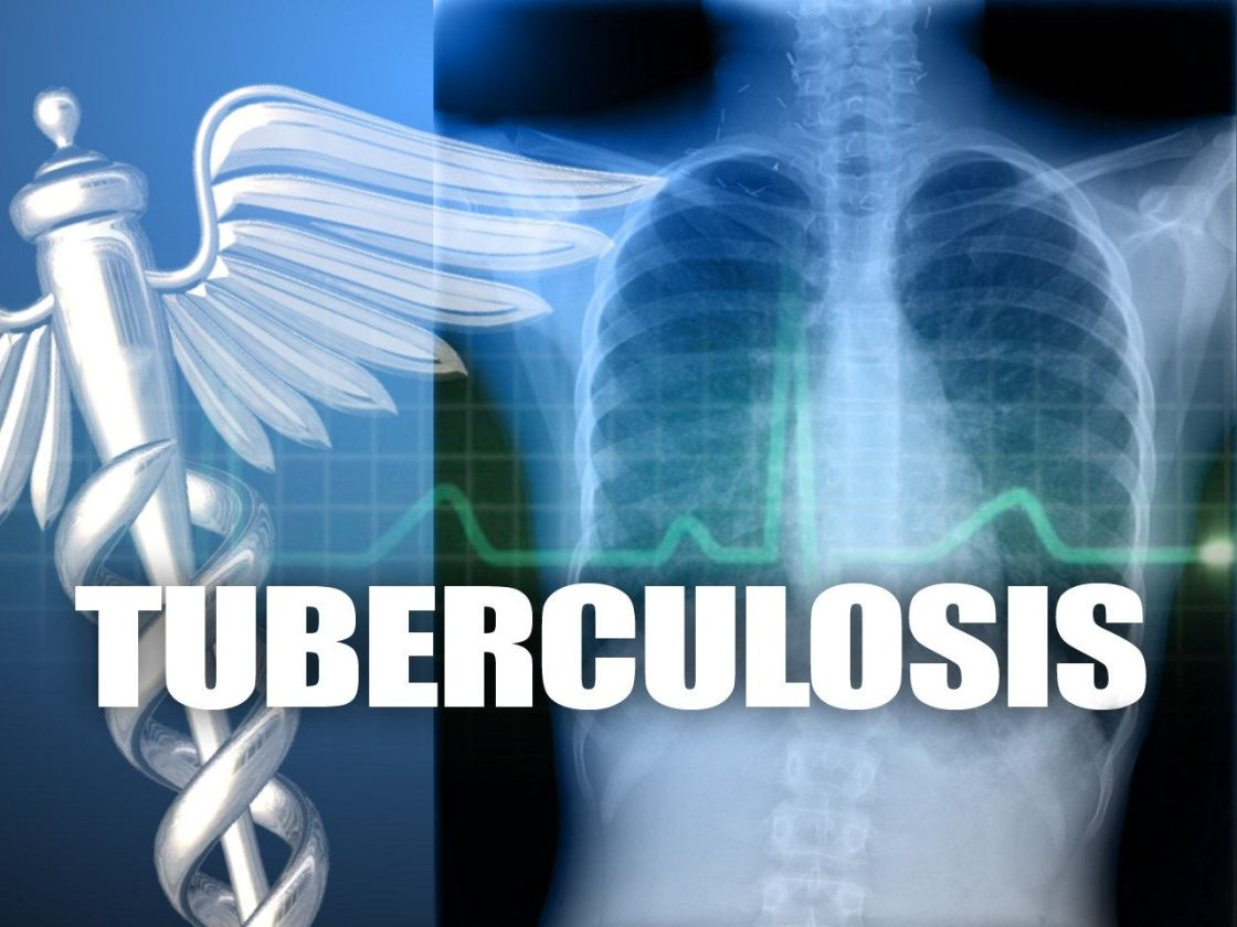 Student at Indio High School Diagnosed with Active Tuberculosis