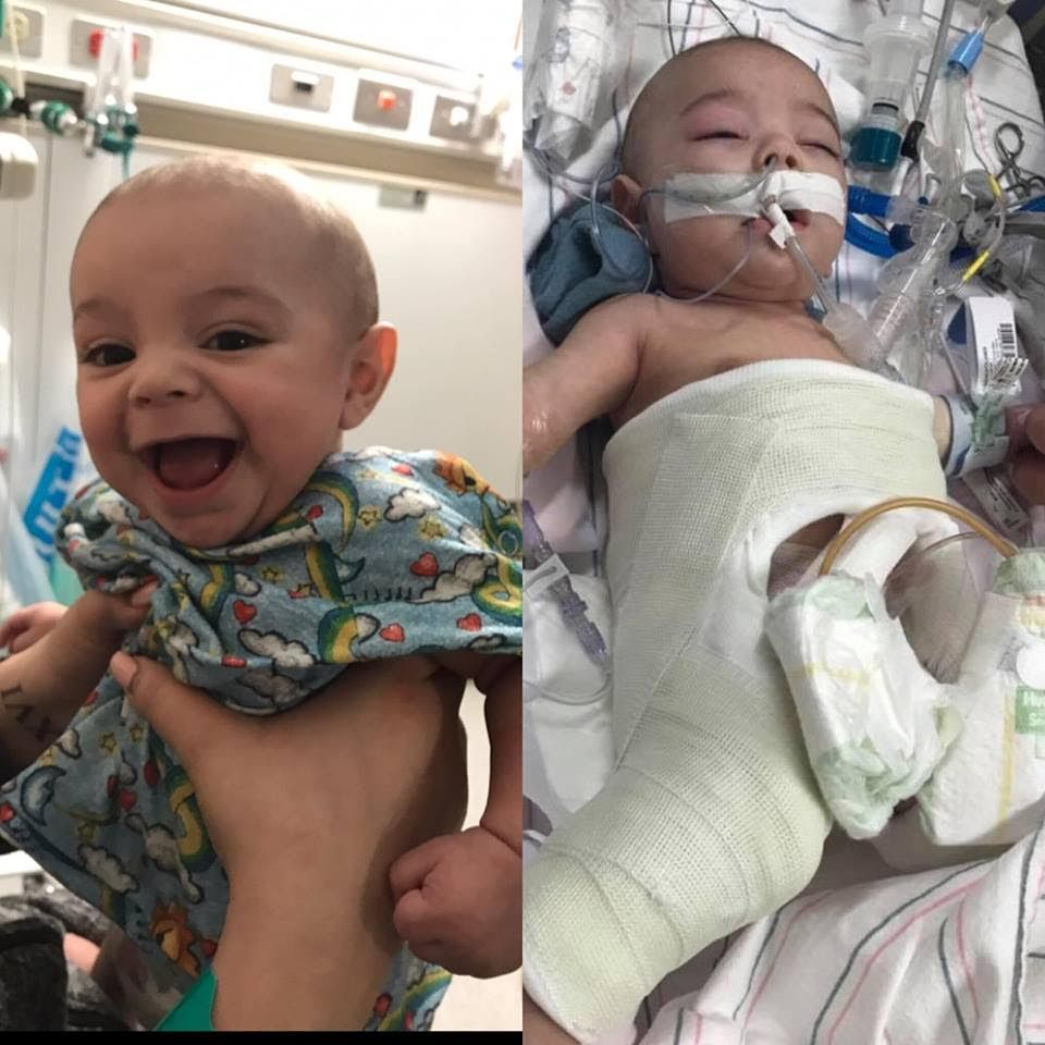Baby Meredith Fights For His Life
