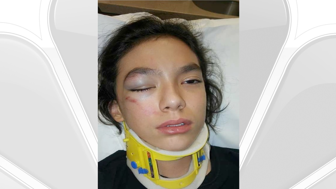 Family of Palm Springs Boy Allegedly Assaulted by Educator Files Suit