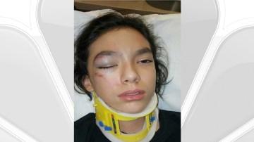 Assault Victim's Mother Criticizes Police Report