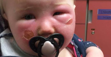 Mom warns about sunscreen after 14-month-old daughter ended up in the ER