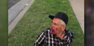 Man, 92, beaten with brick on street, told to 'go back to your country'