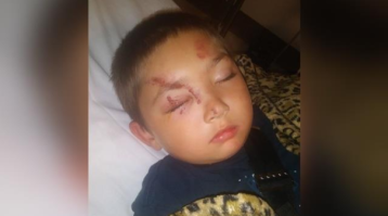 Report: 6-year-old boy hospitalized after standing up to friend's bullies