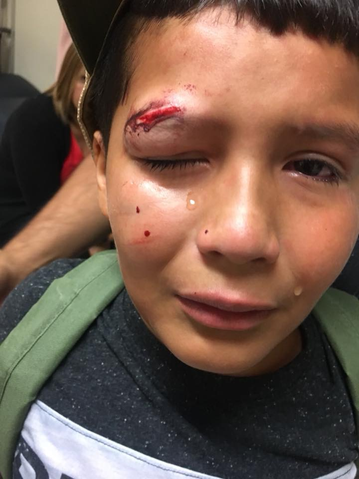 Ten-Year-Old Boy Lands In Emergency Room After Bullying Incident At Elementary School