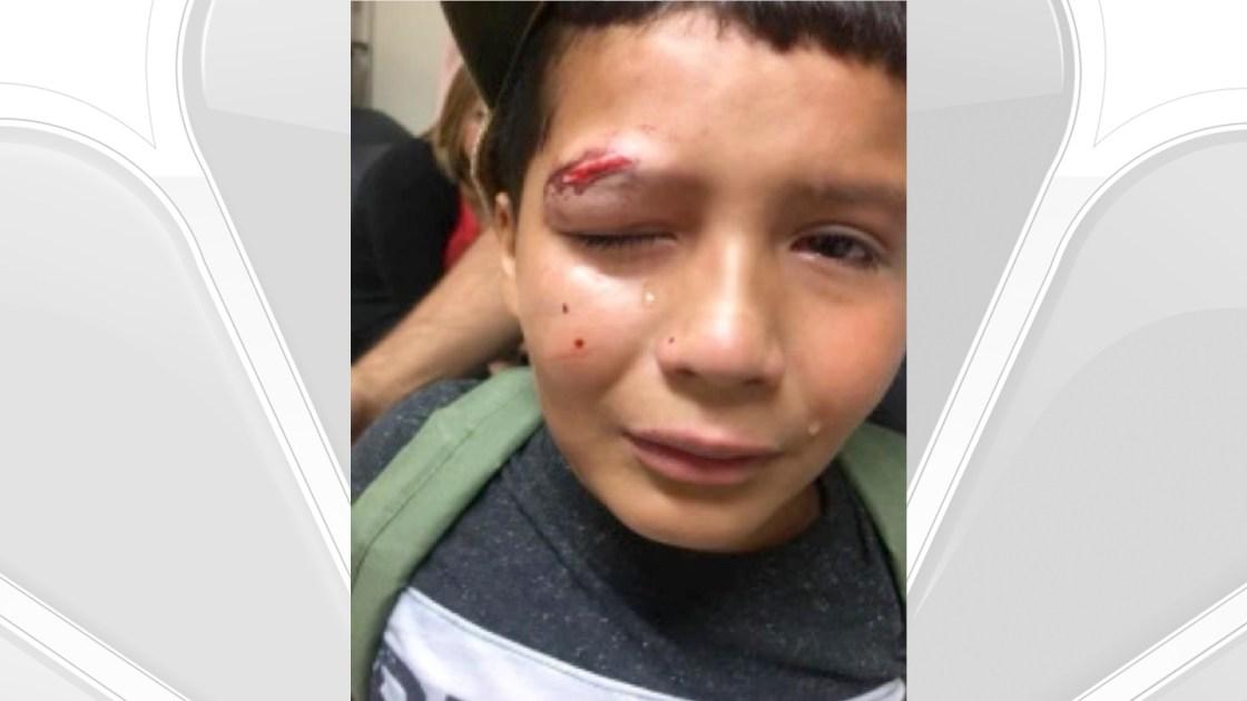 Desert Hot Springs Police Investigating Bullying Incident At Elementary School