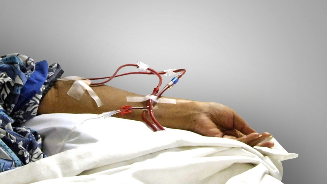 California Voters to Weigh-In on Dialysis Industry Through Prop. 8
