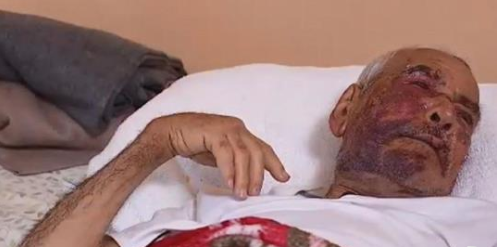 Woman Pleads to Brutal Brick Beating of 92-Year-Old Man