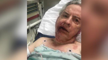 Disabled man suffers fractured skull, broken jaw in assault at Taco Bell