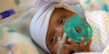 World's Smallest Surviving Baby Born in San Diego