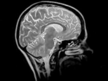 Parkinson's Legislation Gives Hope for a Future Cure
