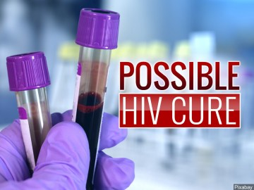 Possible HIV Cure, Study Eliminates Virus in Mice