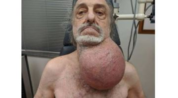 Doctors removed a tumor the size of a soccer ball from a man's neck