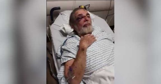 73-year-old grandfather severely injured after being attacked while looking at Christmas lights
