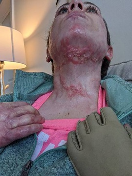 Couple sues Royal Caribbean after sustaining severe burns