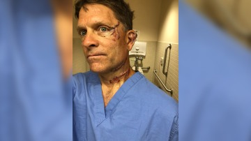 Colorado man survives bear attack in his kitchen